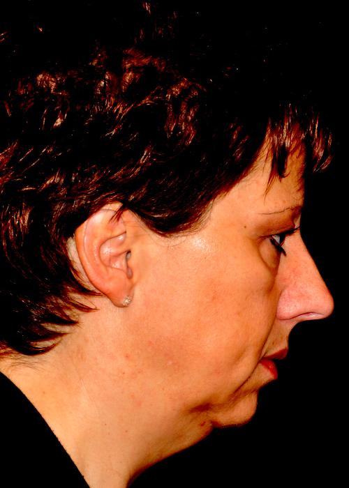 Kinvergroting eigen vetweefsel - Dokter Hupkens Esthetiek