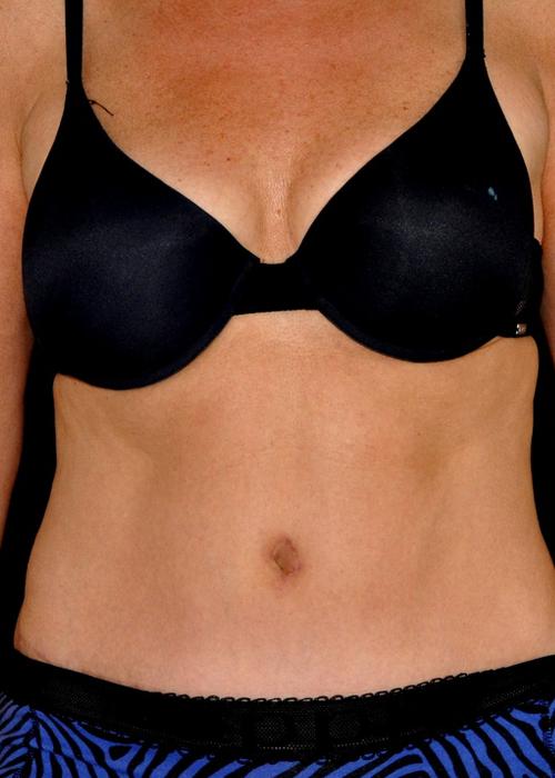 Liposuctie buik - Dokter Hupkens Esthetiek