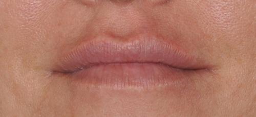 Lipvergroting - Dokter Hupkens Esthetiek