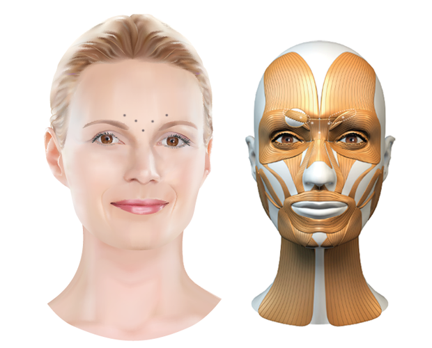 Behandelzone Botox fronsrimpels - Dokter Hupkens Esthetiek