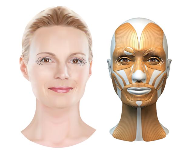 Behandelzone Botox kraaienpootjes - Dokter Hupkens Esthetiek