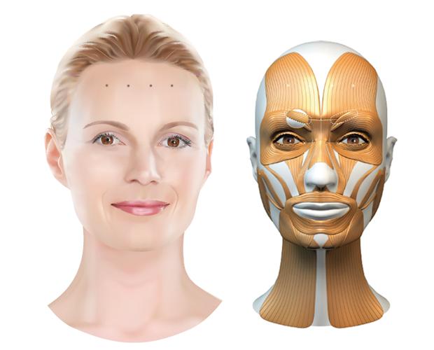 Behandelzone Botox voorhoofdsrimpels