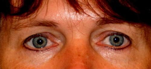 Correctie bovenoogleden - Dokter Hupkens Esthetiek