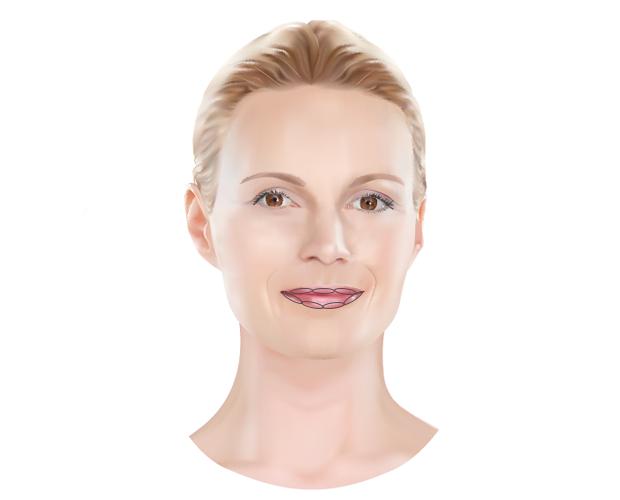 Lipvergroting met fillers