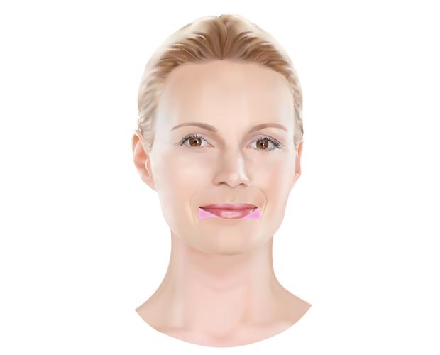 Hangende mondhoeken - Dokter Hupkens Esthetiek
