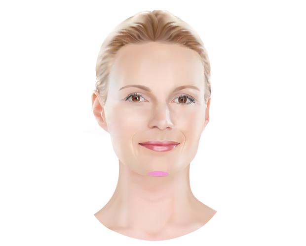 Dokter Hupkens Esthetiek - behandelzones Restylane fillers