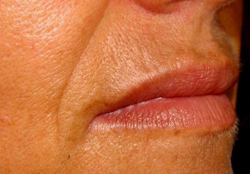 Behandeling neus-liplijn - Dokter Hupkens Esthetiek