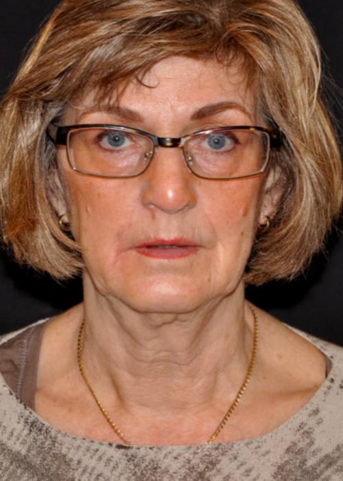 Facelift - Dokter Hupkens Esthetiek