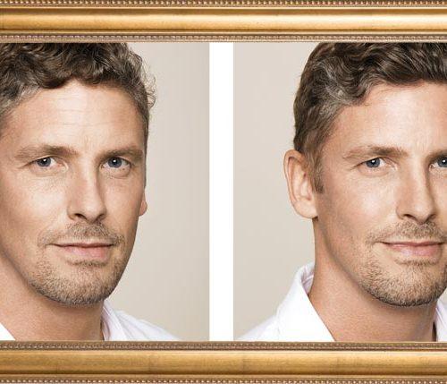 Botox voor mannen: hoe een hype een trend werd!